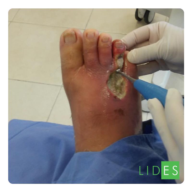 Úlcera en Ante Pie 01